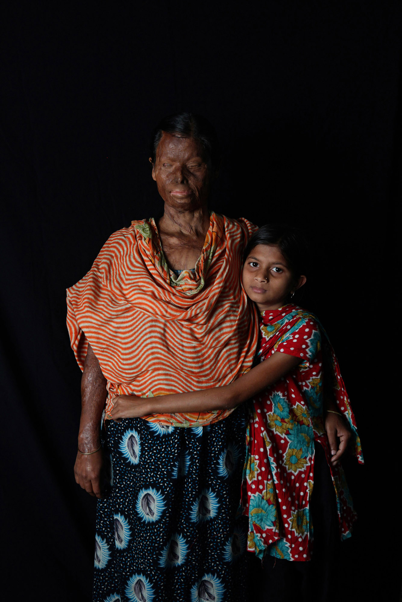 Asia's Shame: Acid Attacks