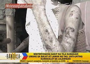 Flesh-Eating Disease 'Prophecy' Deemed a Hoax by Philippine Department of Health