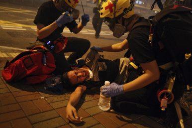 Beatings and Tear Gas: Violence Escalates as Hong Kong Protests Continue